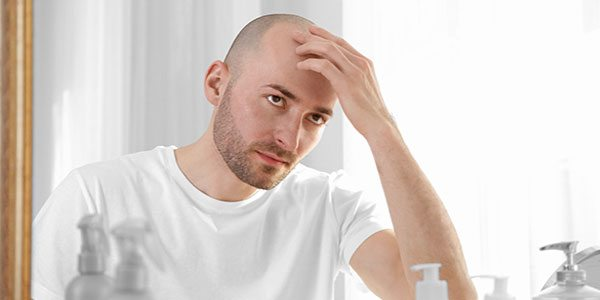 can testosterone related baldness cause prostate cancer 2