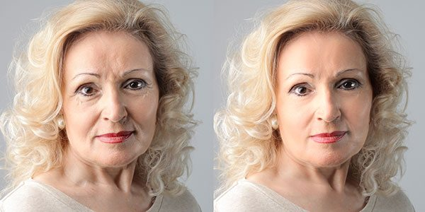 managing skin changes during menopause 2