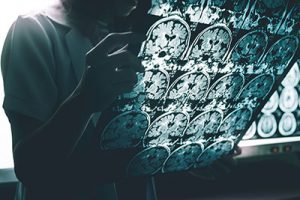 Metabolic Changes a Potential Trigger for Alzheimer's Disease