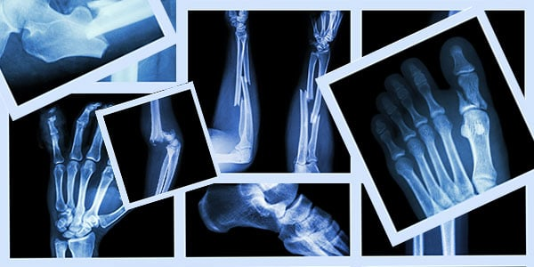 a look at osteoporotic fractures in men 2