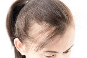How to Minimize and Treat Hair Changes and Damage Due to Menopause 1