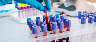 New Test Can Assess Women's Menopausal Status 1