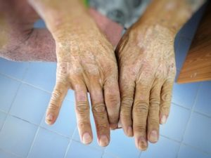 Managing Scleroderma and Aging
