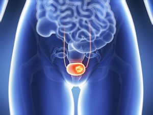Women Who Smoke and Have Early Menopause See Increased Risk of Bladder Cancer