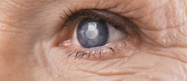 How Aging Hormones Influence Cataracts