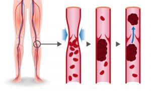 Inflammation, a Risk Factor for Stroke and Aging Health 1